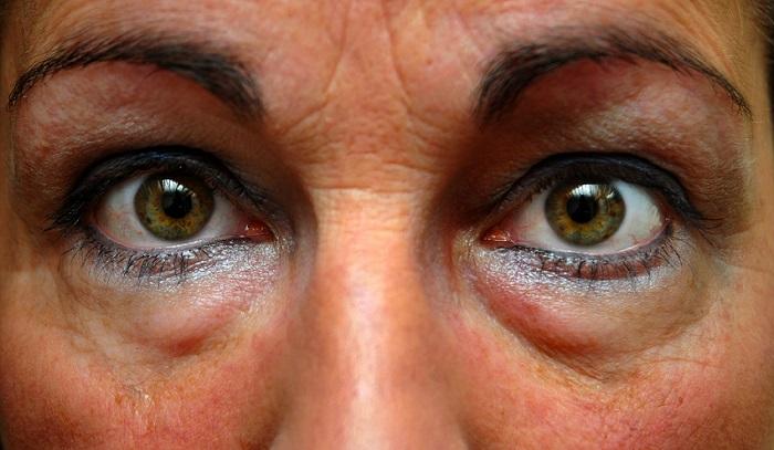 donna con borse sotto gli occhi Pearl'age Cosmetic